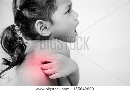 Health problem. asian young girl scratching her itchy back with red effect