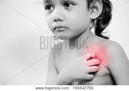 young girl scratch the itch with hand neck itching. red effect