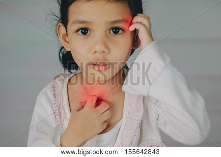Health problem. young girl scratch the itch with hand neck itching Healthcare And Medicine Concept