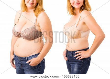 Woman before and after weight loss posing