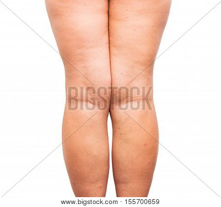 Excessive fat on both female legs after weight gain