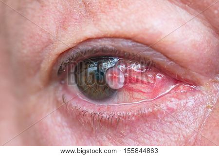 Close up of the eye conjunctiva squamous cell carcinoma