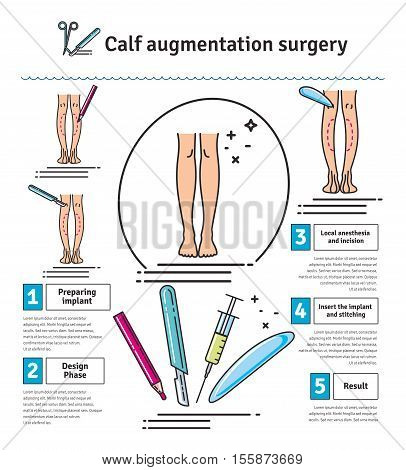 Vector Illustrated set with calf augmentation surgery. Infographics with icons of plastic surgery procedures.