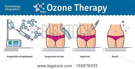 Vector Illustrated set with Cosmetology Ozone Therapy. Infographics with icons of medical cosmetic procedures for skin.