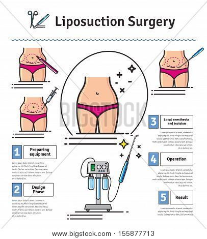 Vector Illustrated set with liposuction surgery. Infographics with icons of plastic surgery procedures.