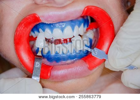 Dentist Finishing Teeth Whitening Procedure With Young Woman. See A Result.dentist Holding Tooth Col