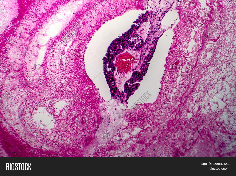 Papillary Serous Image Photo Free Trial Bigstock