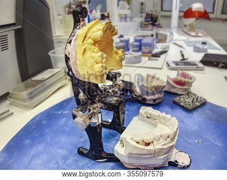 Articulator With Gipsum Cast And False Tooth. Plaster Cast Stomatologic Human Jaws Prothetic Laborat