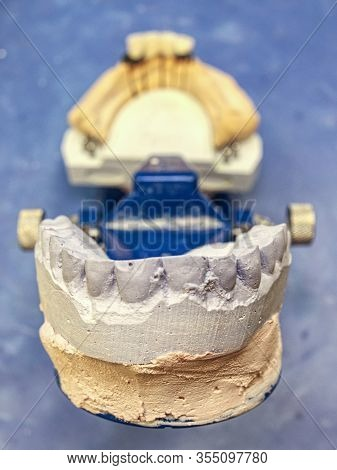 Dental Articulator With Gypsum Cast On The Working Table In The Dental Laboratory