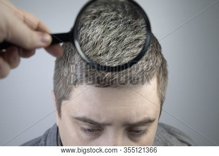 A Trichologist Examines A Young Man's Gray Hair Under A Magnifying Glass. Earlier Bleaching Of Hair