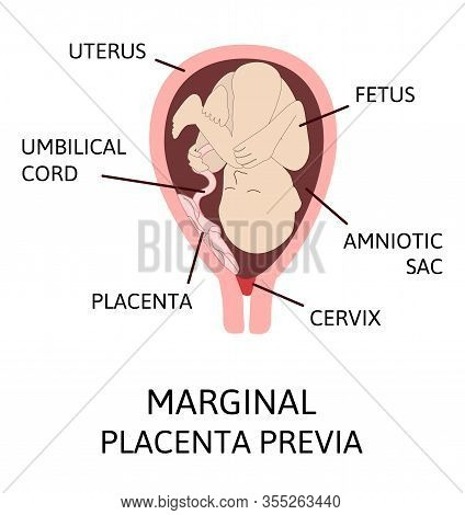 Different Placental Locations During Pregnancy. Major And Normal Placenta Previa, Total And Partial.