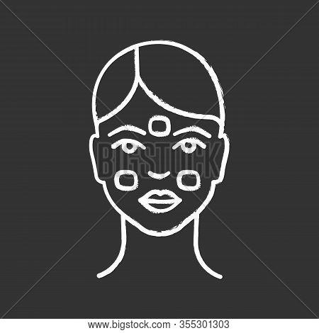 Anesthetic Cream For Neurotoxin Injection Chalk Icon. Facial Numbing Cream. Neuro Toxin Injection Pr