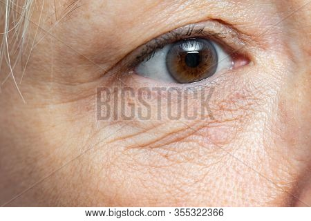Extreme Close Up Detail Of Under Eye Wrinkles And Sagging Skin On Middle Aged Woman.