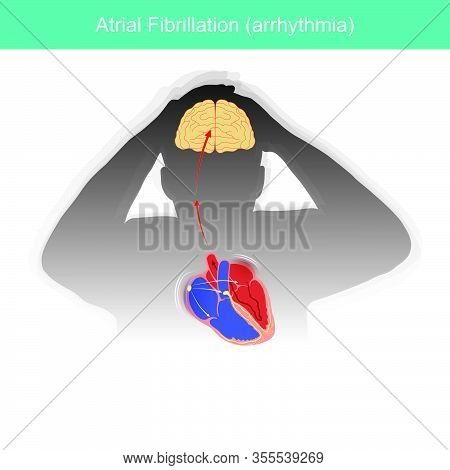 Atrial Fibrillation. Patients Condition In Which The Electrical Signals In Heart Malfunctioning Or C