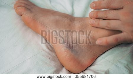 Woman Is Applying Gel On Her Leg With Sprained Ankle Isolated On White Background. Twisted Ankle Wit