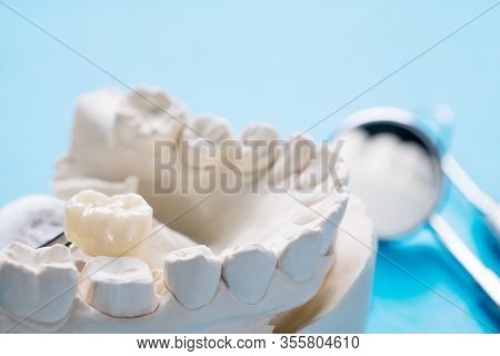 Closeup / Prosthodontics Or Prosthetic / Single Teeth Crown And Bridge Equipment Model Express Fix R