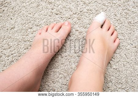 Kid Teenager Bare Feet With A Bandage On A Toe, Wounded Toe Or Ingrown Nail First Aid.