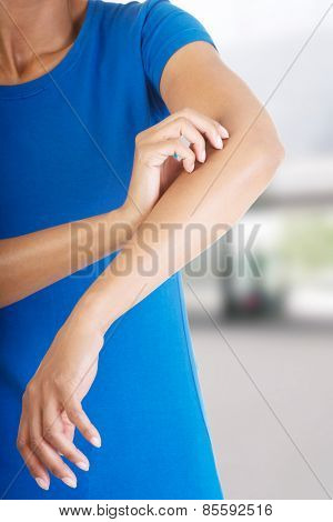 Young woman scratching her self