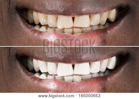 Close-up Detail Of Smiling Man Teeth Before And After Whitening