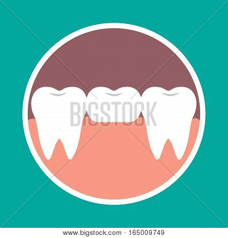 Vector Illustration Icon Dental Bridge. Orthodontics, Dental Implants, Orthopedics.