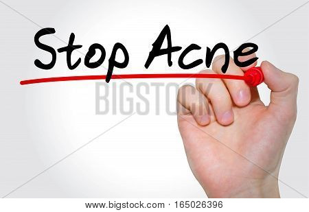 Hand Writing Inscription Stop Acne With Marker, Concept