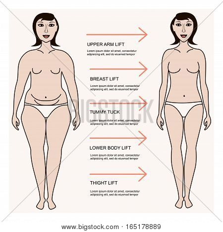 Body correction, lose weight, concept for banner or flyer, abstract isolated vector illustration