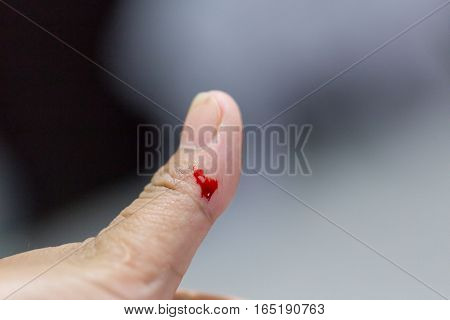 Closeup View Of Finger On Left Thumb Human Hand Is Cut Hurt And Bleeding With Bright Red Blood.