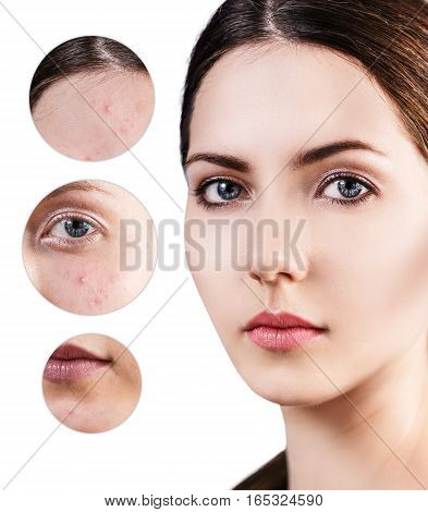 Portrait of young woman and circles shows problem skin over white background