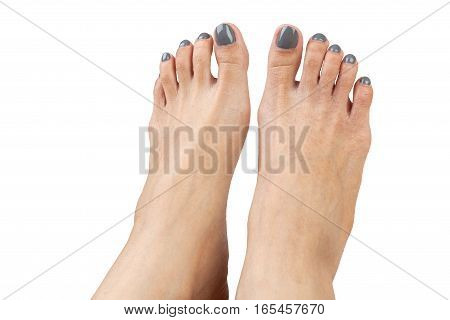 Female Feet With Eczema Infect, Isolated On White Background, Closeup