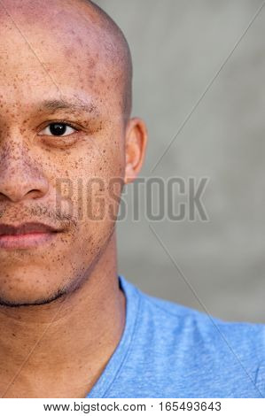 Half Face African American Man With Freckles