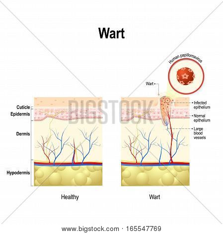 Wart. Cross section of the human skin with Human papillomavirus infection. HPV is a virus which causes warts and cervical cancer.