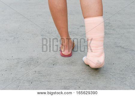 Women foot with the splint is walking