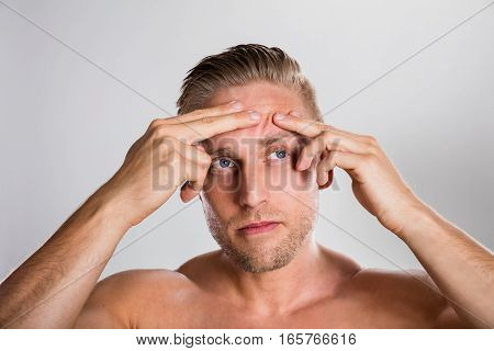 Man Squeezing Pimple On His Forehead. Acne Skin Problem