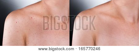 Close-up Of Before And After Result Of Skin Treatment On Grey Background