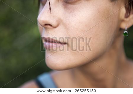 Skin Aging. Female Face Close Up. Problem Skin Of The Face. Pigmented Spots And Freckles. Sunny Sunt