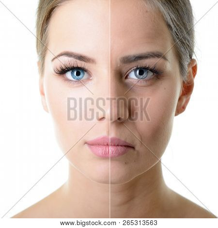 Anti-aging, beauty treatment, aging and youth, lifting, skincare, plastic surgery concept. Beautiful girl with young face and half face of old woman with wrinkles, dark circles, acne and comedones.