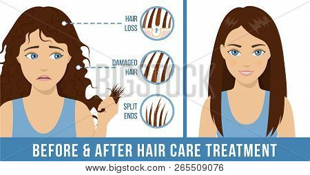 Hair Care. Common Hair Problems - Split Ends, Damaged Hair, Hair Loss. Before And After Hair Care Tr