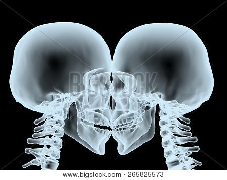 X-ray Kiss Close Up, Isolated On Black 3d Illustration