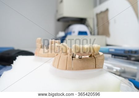 Workplace Of A Dental Technician For The Manufacture Of Dental Prostheses On Implants