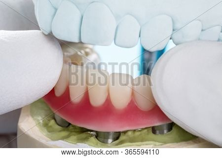 Closeup/ Dental Implants Supported Overdenture On Blue Background/ Screw Retained/ Implant Restorati