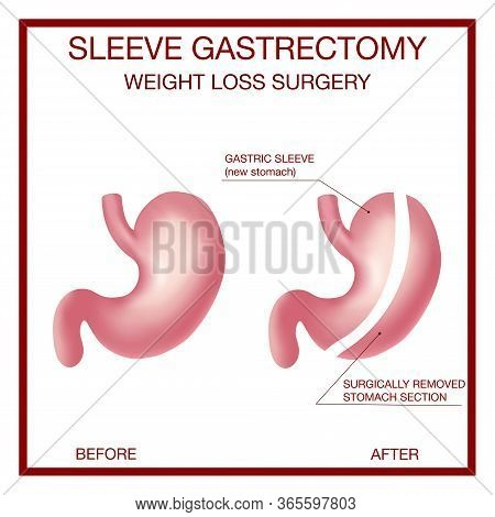 Vertical Sleeve Gastrectomy. Weight Loss Surgery .anatomical.