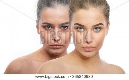Face of young fresh beautiful girl and old tired woman with wrinkles, dark circles and and gray hair. Beauty treatment, aging and youth, lifting, antiaging, skincare, hydration, plastic surgery