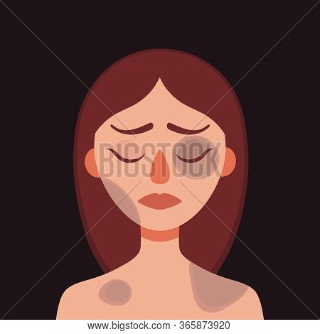 Sad Young Woman With Bruises And Wounds On A Dark Background.concept Of Domestic Violence, Sexual Ab