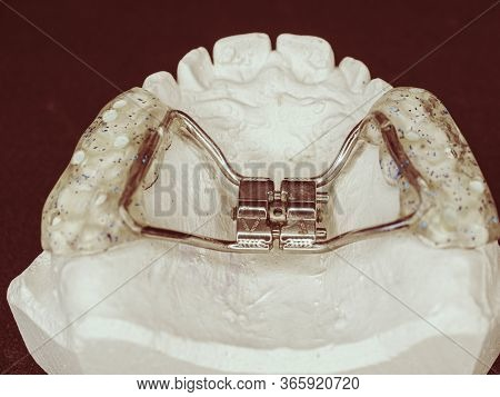 Dental Upper Jaw Bracket Braces Model On Dentist Table. Reparation Of Jaw Defects Of Young Patients.