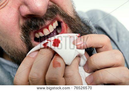 Man Is Suffering Gums Bleeding