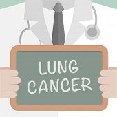 minimalist illustration of a doctor holding a blackboard with Lung Cancer text, eps10 vector  poster