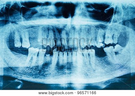 Panoramic Dental X-ray Image Of Teeth. Detail.