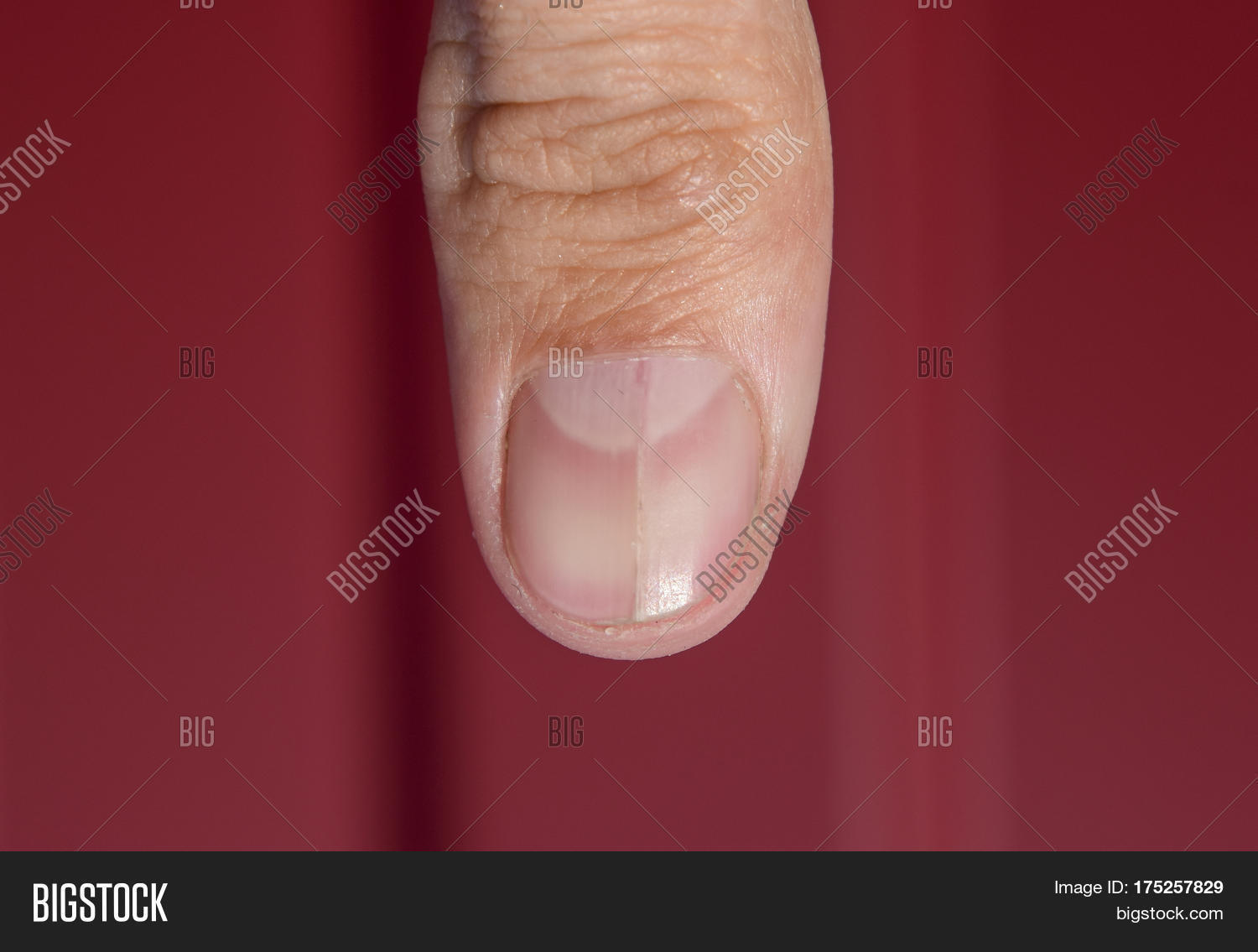 Forked Nail On Thumb. Image & Photo (Free Trial) | Bigstock