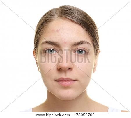 Beautiful young woman with problem skin on white background