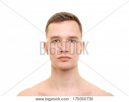 Handsome young man with problem skin on white background